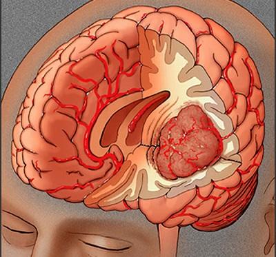 исследования головного мозга