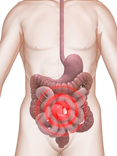 воспаление тонкого кишечника