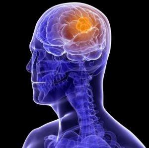 Белки и опухоль мозга
