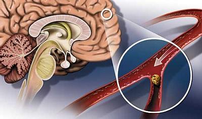 Атеросклеротические бляшки в мозгу