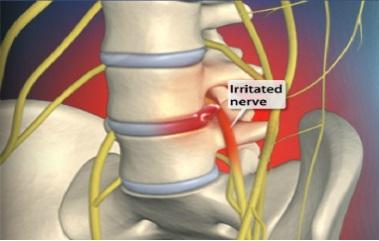 Локализация боли при воспалении