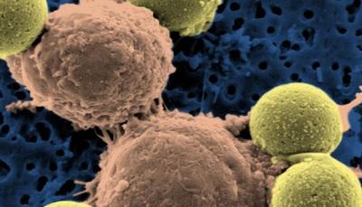 Лечение онкологических болезней