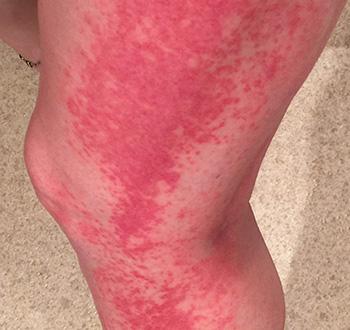 Аллергия на солнце фото